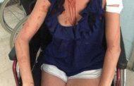 Refuzoi të paguante çmimet e kripura, 26-vjeçarja masakrohet nga pronari i hotelit