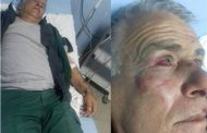 """Roja e """"Sharrit"""" rrëfen se si u rrah nga prerësit ilegalë të pyjeve(Video)"""