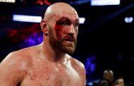 Tyson Fury konfirmon lëndimin e tij gjatë stërvitjeve, ndeshja kundër Wilderit në dyshim?